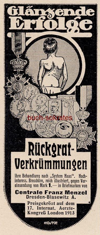 Werbe-Anzeige / Werbung/Reklame System Haas bei Rückgrat-Verkrümmungen - Centrale Franz Menzel, Dresden (DW13/39)